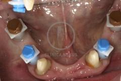 RehabilitacioMaxInferior2