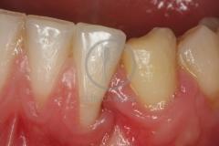 Cirugiaplasticaperiodontal1