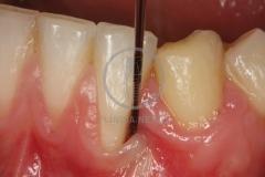 Cirugiaplasticaperiodontal2