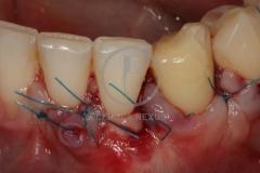Cirugiaplasticaperiodontal7