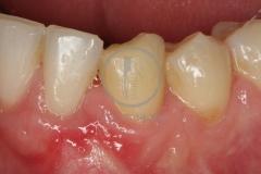 Cirugiaplasticaperiodontal8