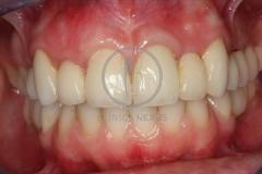 atrofiamandibular6