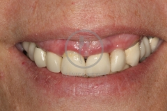 implantoSoportada1
