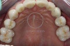 implantoSoportada6