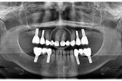 implantoSoportada8