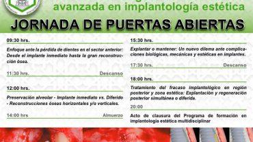 Programa de formación avanzada en Implantología Estética