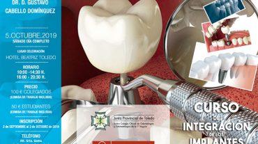 Curso de Integración de los Implantes en Odontología de vanguardia